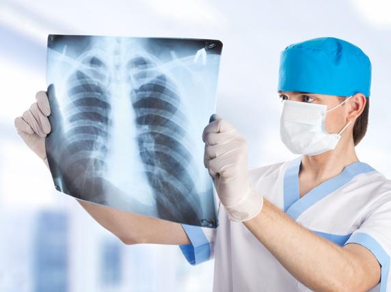 Chrisofix® Fracture Costale etudes, confort, sécurité et réduction des douleurs pour les côtes cassées